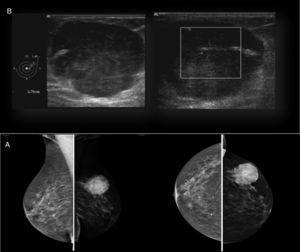 Estudio radiológico mamario: A) Mamografía (proyección mediolateral oblicua y craneocaudal): lesión nodular densa de 40mm en CSE-MI parcialmente definida. BI-RADS IV. B) Ecografía mama-axila: nódulo sólido de 38mm de diámetro, con vaso prominente con flujo en región central. Axila sin hallazgos patológicos. BI-RADS IV.