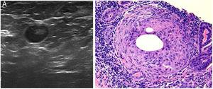 A) Imagen nodular e hipoecogénica de aproximadamente 1cm de diámetro compatible con quiste sólido mamario. B) Imagen histológica en la que se aprecia granuloma no caseificante adyacente a un conducto mamario. Ambas pertenecientes a la paciente del caso 1 (tinción hematoxilina-eosina, x100).