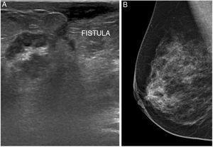 A) Imagen ecográfica que muestra patrón tisular heterogéneo con ductos dilatados con contenido ecogénico y trayecto fistuloso hacia piel de aréola. B) Mamografía oblicua que identifica asimetría focal retroareolar derecha. Ambas pertenecientes a la paciente del caso 2.