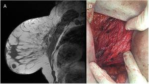 A) Adquisición sagital T1 en la que se observa material hipointenso (silicona) delimitando los septos interlobulillares. B)Lecho quirúrgico del pectoral mayor en el que se observan varios siliconomas en el espesor muscular.