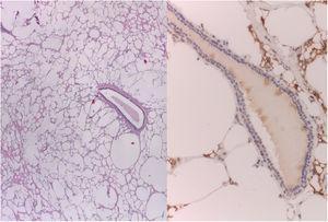 Estudio histopatológico de la lesión. Imágenes de microscopia óptica. Izquierda: tinción hematoxilina eosina a 4× aumentos; derecha: tinción inmunohistoquímica CD68 a 20× aumentos. En ambas imágenes se observan histiocitos vacuolados, citoplasmas ópticamente vacíos y células gigantes multinucleadas.