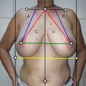 Medición de la simetría mamaria según el software que mide cuantitativamente la simetría frontal. 1: longitud de la línea media clavicular al pezón; 2: longitud de la horquilla esternal al pezón; 3: longitud de la línea media al pezón, y 4: longitud del surco submamario.