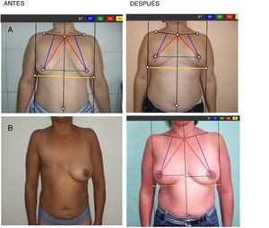 A) Cirugía inmediata oncoplástica. B)Cirugía diferida con colgajo miocutáneo de dorsal ancho.