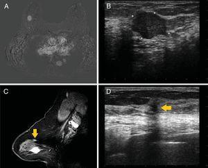 Paciente con diagnóstico de carcinoma ductal infiltrante en línea intercuadrántica externa de mama derecha, de 25mm (A,B). En la RM se identifica un nódulo de nueva aparición en cuadrante superoexterno de mama derecha, de 6mm, morfología redondeada, margen espiculado y captación en anillo con curvas tipoII, caracterizado con esta técnica como BI-RADS4 (C). En la ESL se corresponde con un nódulo de margen espiculado, con diámetro vertical mayor que horizontal, que se clasifica como BI-RADS4C (D). Se realiza BAG con resultado de carcinoma ductal infiltrante. Por tanto, se trata de un carcinoma multifocal que cambia el manejo quirúrgico inicial de cirugía conservadora a mastectomía.