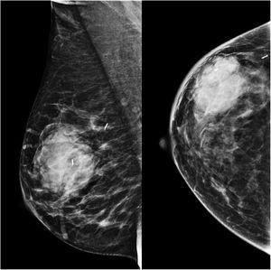 Mamografía vistas MLO y CC.