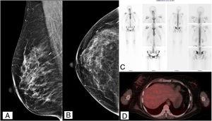A) Mamografía MLO. B) Mamografía CC. C) Gammagrafía ósea. D) PET SCAN estudios de imagen posterior al tratamiento.