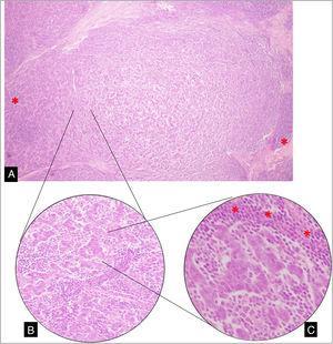 A) Sección de tumor de mama en el que se observa formación nodular de células anaplásicas, entremezcladas y rodeadas (*) por un prominente componente linfoplasmocitario (10X). B) Disposición en cordones de células que se anastomosan (20X). C) Células anaplásicas con márgenes citoplasmáticos poco definidos con patrón de crecimiento predominantemente sincitial, rodeadas de linfocitos (*) y escasas formaciones tubulares (40X).