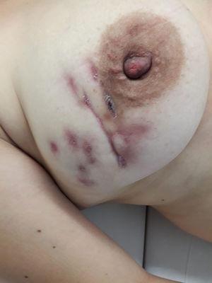 Seis meses tras la intervención quirúrgica.