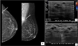 a)Mamografía de mama izquierda. En el cuadrante superoexterno se distingue una imagen densa, mal delimitada, correspondiente a nódulo palpable por la paciente (flechas). b)Ecotomografía de mama izquierda. Se observa área hiperecogénica del tejido celular subcutáneo de 31×15×34mm, en cuyo interior se visualiza una imagen bilobulada, hipoecogénica, de bordes parcialmente delimitados, de 17mm de diámetro mayor. Se asocia a un segundo nódulo de similares características ecográficas, de 6mm. c)Ecografía de mama izquierda postratamiento. Se observa nódulo de 17mm sin cambios, pero desaparición del área hiperecogénica anteriormente descrita.
