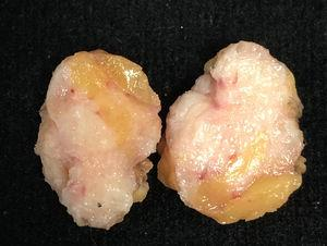 Macroscopic appearance of a surgical specimen removed due to a suspicious image on mammography. The patient was a 61-year-old FT with breast implants and under hormonal treatment. She was surgically treated for having a palpable and spiculated image at mammography which proved to be a benign lesion with stromal fibrosis.