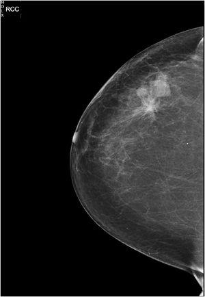Mamografía, proyección craneocaudal del Caso 1 de mama derecha donde se objetiva trastorno arquitectural de 4 cm en relación con la cicatriz de tumorectomía.