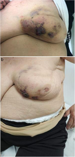 Lesión violácea oscura, sobreelevada y ulcerada a nivel del cuadrante inferointerno compatible con angiosarcoma de la paciente del Caso 2.