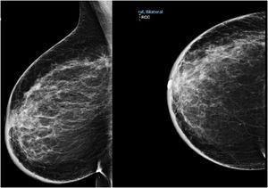 Mamografía mama derecha en proyección oblicua mediolateral y craneocaudal con engrosamiento cutáneo generalizado y aumento de densidad en cuadrante superoexterno (CSE) y retroareolar.