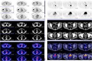 PET TC con foco hipermetabólico en CSE de mama derecha y refuerzo difuso de actividad en la piel de la mama, múltiples focus hipermetabólicos en axial derecha y dos focus a nivel de axial izquierda. Además, se aprecia foco hipermetabólico en sigma.