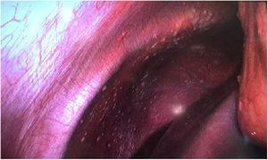 Imágenes intraoperatorias de la primera intervención que detectan implantes peritoneales a nivel de peritoneo en hemidiafragma derecho y epiplón.