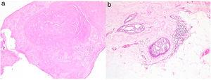 Biopsia por punción con diagnóstico de papiloma esclerosado (HE×40) (a). Pieza de resección con un carcinoma intraductal de bajo grado sin necrosis (HE×40) (b).