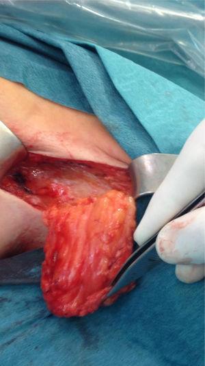 Aspecto del lecho tumoral en la raíz del brazo izquierdo.