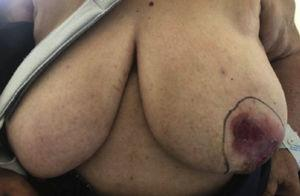 Irregular huge ulceration in a 76-year-old woman. Physical examination.