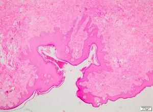 Histopathological findings: polypoidal lesion covered by squamous epithelium with fibrocollagenous hypocellular stroma and small vessels in the stroma (H&E).