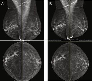 Imágenes oblicuas medio-laterales y craneocaudales de ambas mamas, que se obtuvieron de la misma paciente con 24 h de diferencia. A) mamografía digital de campo completo. B) Imagen de baja energía de la CEM.