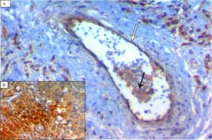 (A) A case of TNBC (medullary pattern) showing strong Notch4 immunoreactivity in vascular endothelium (white arrow) and neoplastic cells (black arrow) (×400). (B) showing increased staining intensity of neoplastic cells at the invasive edge (white arrow) (×400).