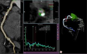 Ejemplo de cuantificación y caracterización de la carga de placa, obtenido a partir de imágenes de tomografía computarizada coronaria y analizado por QAngio CT RE (Sistemas de Imágenes Médicas Medis®, Leiden, Países Bajos). El análisis de histología virtual está codificado por colores como sigue: blanco = calcio; verde oscuro = tejido fibroso; verde claro = tejido fibro-graso; rojo = tejido necrótico. En el caso de la imagen, predomina el componente fibroso. Este software también proporciona información sobre la carga de placa en el árbol coronario completo.