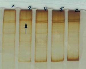 Electroforesis en gel de acrilamida. Exón 12D: se observa un cambio en el patrón en la muestra 2 respecto al control y al resto de muestras analizadas (flecha).