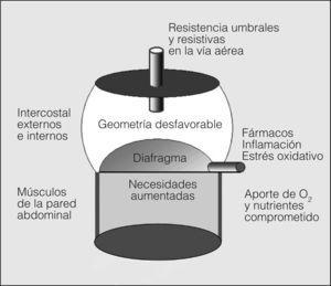Representación idealizada de diversos factores que influyen en la función de los músculos respiratorios de los pacientes con EPOC (para detalles consúltese el texto).