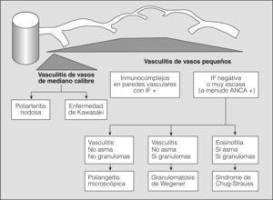 Clasificación de las vasculitis. ANCA: anticuerpos citoplásmicos antineutrófilos; IF: inmunofluorescencia. (Tomada de Jenette et al2.)