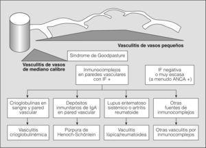 Clasificación de las vasculitis (continuación de fig. 1). ANCA: anticuerpos citoplásmicos antineutrófilos; IF: inmunofluorescencia; IgA: inmunoglobulina A. (Tomada de Jenette et al2.)