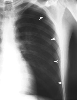 Neumotórax completo en el pulmón izquierdo.