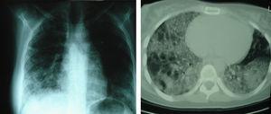 Evolución radiológica tras 12 meses de tratamiento con factor estimulante de colonias de granulocitos y macrófagos por vía inhalada.
