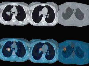 Tomografía por emisión de positrones-tomografía computarizada que muestran las lesiones pulmonares.