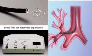 Catéter de termoplastia, generador de radiofrecuencia y sistema colocado en los bronquios visibles a través de broncoscopio flexible. (Cortesía de Asthmatx Inc.)