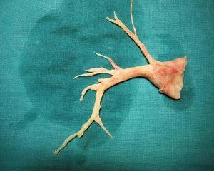 Pieza quirúrgica de enfermedad pulmonar tromboembólica crónica tipo 2.