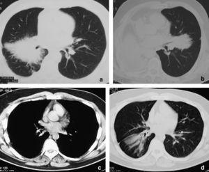 Caso 1: tomografía computarizada de tórax (a) con contraste que muestra una masa espiculada de gran tamaño alrededor del bronquio intermediario; 9 meses después (b) se detecta una masa espiculada contralateral que entra en contacto con el bronquio de la língula. El paciente fue tratado con prednisona. Caso 2: la tomografía computarizada torácica (c) muestra una lesión endobronquial con calcificaciones puntiformes en el bronquio lobular inferior (flecha), que produce una atelectasia parcial postobstructiva del lóbulo inferior derecho (d).