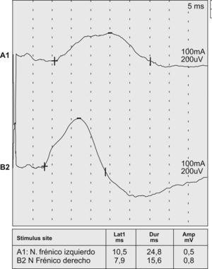 La velocidad de conducción demuestra una respuesta del nervio frénico izquierdo (A1) con latencia aumentada y amplitud disminuida. Respuesta normal del nervio frénico derecho (B2).