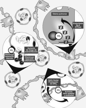 Esquema de los principales mecanismos de lesión pulmonar en los que el CO2 ha sido vinculado. 1) Endocitosis de la Na,K-ATPasa con disminución de la reabsorción de fluido alveolar. 2) Disminución de la respuesta inflamatoria con menor capacidad de reparación tisular y aumento del riesgo a sobre infecciones. 3) Aumento del daño tisular mediado por especies reactivas de O2.
