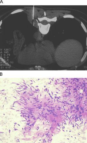 Schwannoma maligno. A) Punción en decúbito prono de una masa paravertebral izquierda en forma de huso, homogénea. B) Tinción con Diff-Quik® de la muestra obtenida en la que observamos grupos laxos de células fusiformes con moderada atipia sobre un estroma fibrilar.