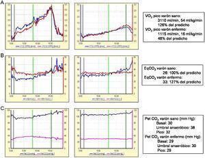 Parámetros ergoespirométricos en un varón sano de 45 años y otro de igual edad con HAP idiopática en clase funcional iii. A) Capacidad aeróbica: consumo de oxígeno (VO2). La línea verde vertical indica el umbral anaeróbico. B y C) Eficiencia ventilatoria. B) EqO2/EqCO2: equivalente ventilatorio para el oxígeno/dióxido de carbono. C) PetO2/CO2: presión parcial al final de la espiración de oxígeno/dióxido de carbono.