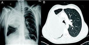 A) Radiografía de tórax posteroanterior que muestra gran masa en lóbulo superior derecho. B) Tomografia axial computarizada de tórax correspondiente al paciente.