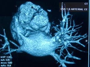 Angiotomografía de venas pulmonares: se observa una amputación completa de la luz de la vena pulmonar superior izquierda, manteniéndose el confluente venoso superior derecho con diámetro normal. Los confluentes venosos inferiores derecho e izquierdo presentaban un diámetro reducido a la altura del ostium.