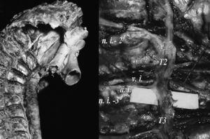 Anatomía simpático torácico. a.i.: arteria intercostal; n.i.-2°: 2° nervio intercostal; n.i.-3°: 3° nervio intercostal; T2: 2° ganglio simpático torácico; T3: 3° ganglio simpático toráco; v.i.: vena intercostal.