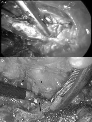 a. Sección del cartílago costal extremo anterior de la primera costilla derecha. b. Sección del músculo escaleno anterior con bisturí ultrasónico en un caso del lado izquierdo. La flecha señala el músculo escaleno con la vena subclavia (V) por delante y la arteria subclavia (A) por detrás.