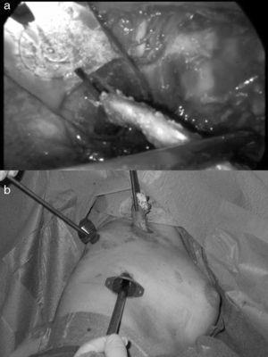 a. Sección del extremo posterior de la primera costilla. b. Extracción de la primera costilla por la minitoracotomía.