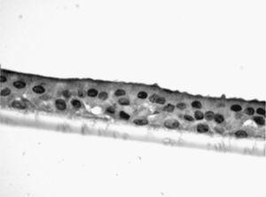 Fotomicrografía de epitelio seudoestratificado diferenciado obtenido de células epiteliales bronquiales humanas diferenciadas obtenidas en individuos fumadores sanos.