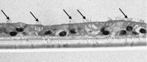 Fotomicrografía de epitelio seudoestratificado diferenciado obtenido de células epiteliales bronquiales humanas diferenciadas obtenidas en individuos fumadores sanos en la que se observan las estructuras ciliares (señaladas con flechas) y células secretoras (halo blanco).