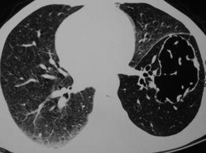 La tomografía computarizada (TC) de tórax en la presentación inicial muestra un quiste de forma irregular y pared fina junto con una disminución generalizada de la atenuación en el lóbulo inferior izquierdo.
