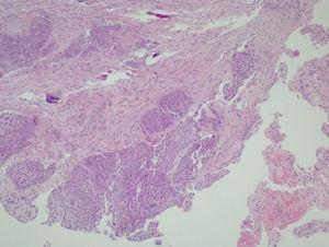 La microfotografía de la muestra de biopsia endobronquial revela un carcinoma de células escamosas (tinción con hematoxilina-eosina; ×40).