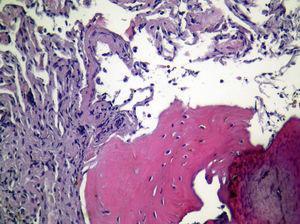 Biospia pleural por videotoracoscopia&#59; tinción H-E. Engrosamiento de pleura visceral con formación de tejido óseo y normalidad de parénquima pulmonar subyacente.